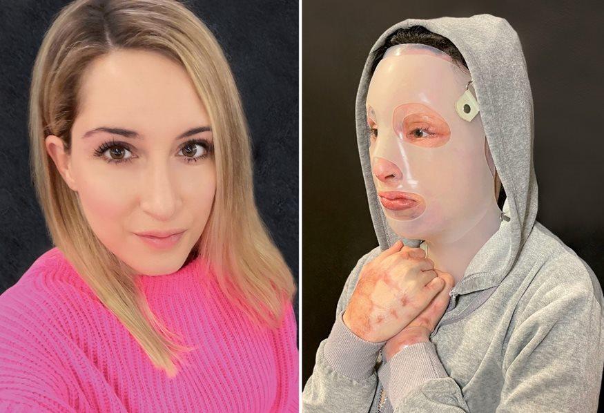Ιωάννα επίθεση με βιτριόλι